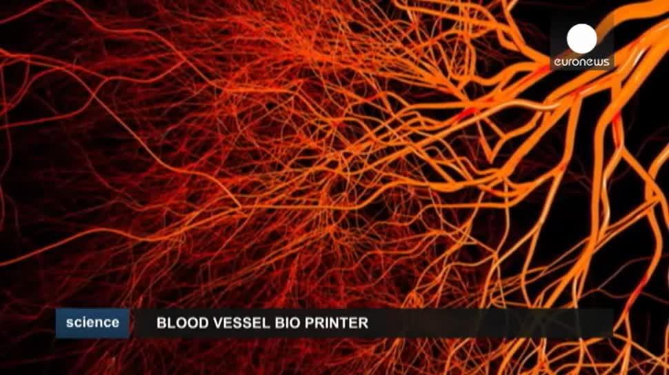 Forschung, 3D-Drucker, Drucker, Medizin, EuroNews, 3D-Druck, Chinesische Akademie für Ingenieurwissenschaften
