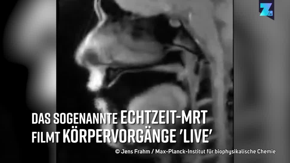Forschung, Zoomin, Medizin, Gesundheit, MRT, Max-Planck-Institut, Echzeit-MRT, Jens Frahm