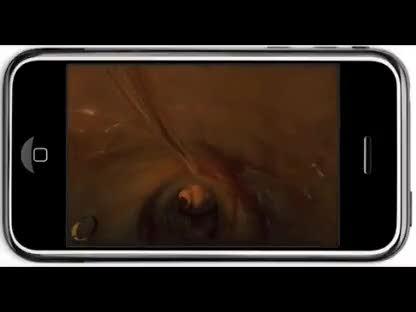 Iphone, Gyroskop, Gyromaniac, Dickdarm